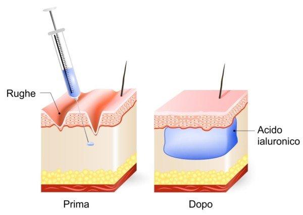 Azione dell'acido ialuronico per il trattamento di rughe